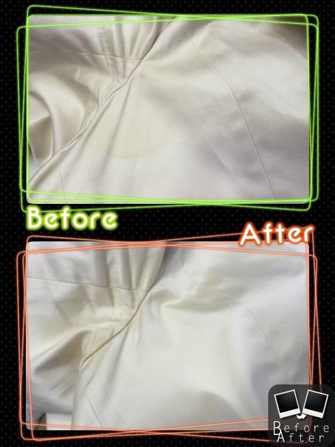 脇の変色、脇の修復!
