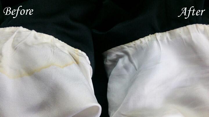 脇の変色シミ